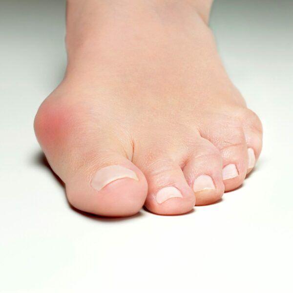HAllux Valgus, bunion, silicone bescherming, knobbel, Bunion, Fresco - Feetinmotion