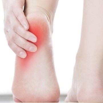 Fasciitis plantaris FeetinMotion