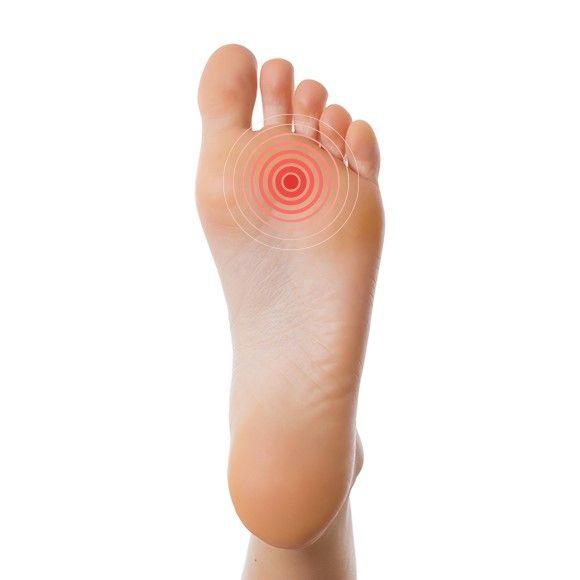 Kidney Felt pads - vilt - voorvoet - ontlasting - pijn - Fresco - Feet in Motion (3)