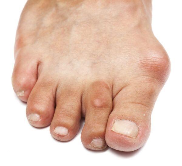 Wat zijn klauwtenen? - Feet in Motion
